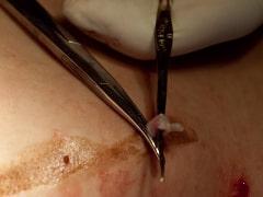 Как делается операция на удаление вен на ногах