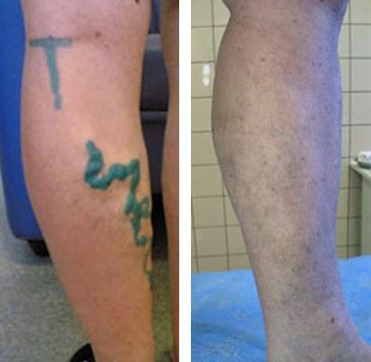 Гель против варикоза вен на ногах