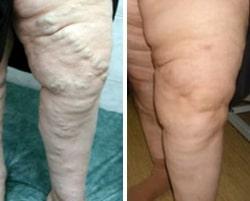 склеротерапия результат лечения