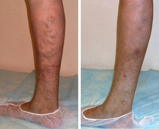 Как проходит операция по удалению варикоза на ногах
