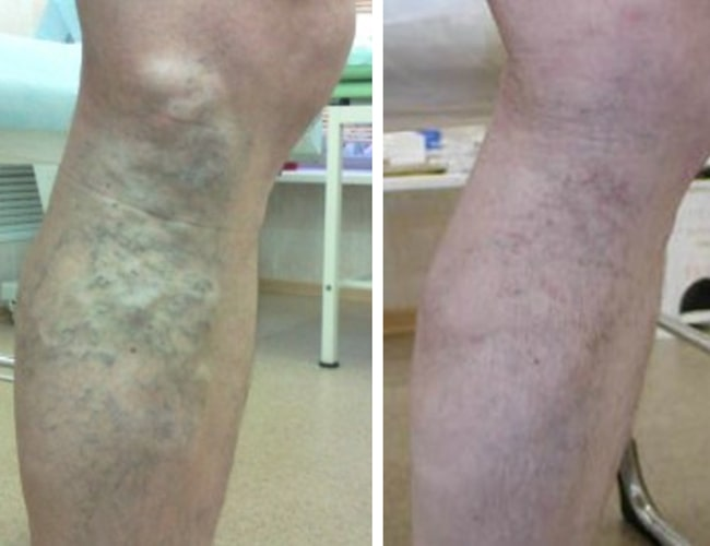 Венарус курс лечения при варикозе продолжительность