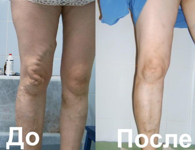 Осложнения при хирургическом лечении варикозной болезни