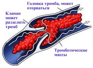 Лучшее средство от варикоза на ногах