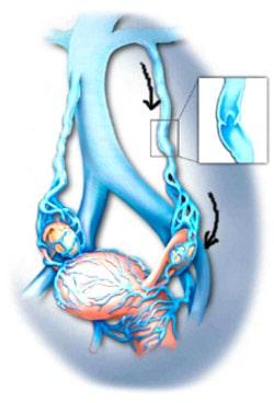 Как избавиться от боли при варикозе