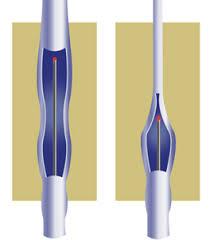 Кровотечение из варикозно расширенных вен пищевода лечение