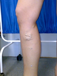 Операция по поводу варикоза ног