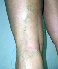 Лечение варикоза лазером, как проводят операцию?