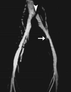 Вздутые вены на ногах лечение