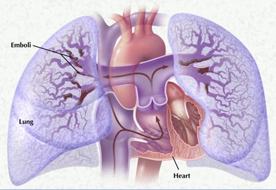 Тромбоэмболия легочной артерии, признаки ТЭЛА. Неотложная помощь ...