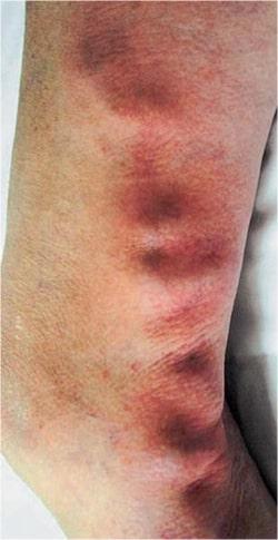 Боль в ногах ниже колен варикоз