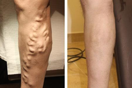 Боль в ноге при апендиците