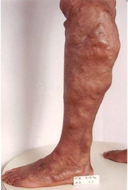 Варикоз органов малого таза лечение