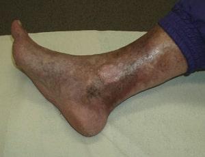 Квасцы лечение варикоза