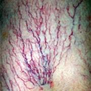 Запущенный варикоз вен на ногах лечение